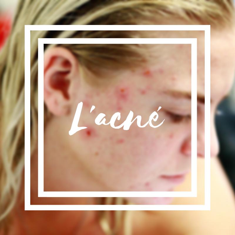 L'acné, un problème peau très répandu